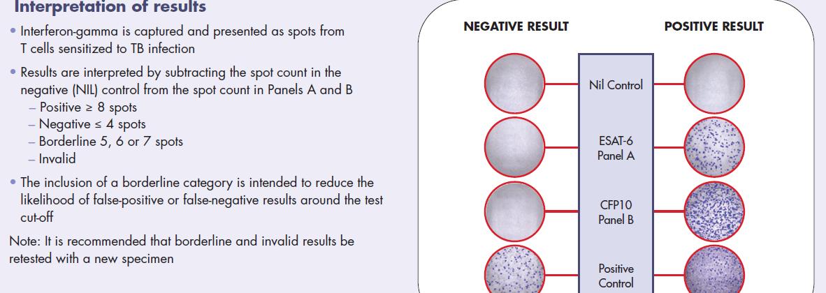 T-SPOT.TB 결핵 검사 결과 보는법